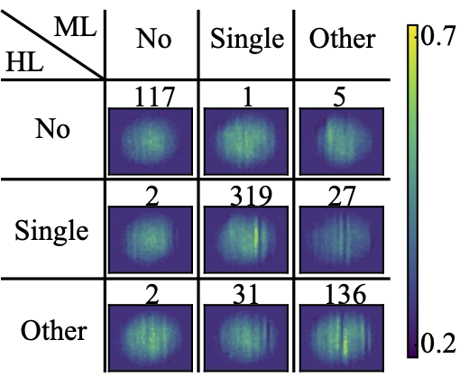 Machine-learning enhanced dark soliton detection in Bose–Einstein condensates